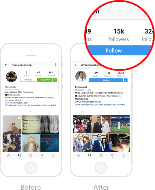 We grew the instagram following of a talented Beverly Hills Periodontist over 4 months.